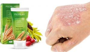 Psorilax κρεμα, συστατικά, λειτουργία - πώς να εφαρμόσετε;